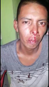 El propio director de la fuerza policiaca golpeó salvajemente a este ciudadano del heroico pueblo de Akumal